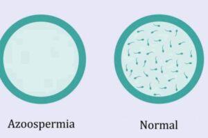 Azoospermia – inferiliteti mashkullor dhe mënyrat e trajtimit