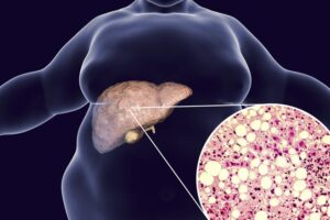 Dr. Menon konstaton: Këto simptoma tregojnë që në mëlçi është shtresuar dhjamë e tepërt!