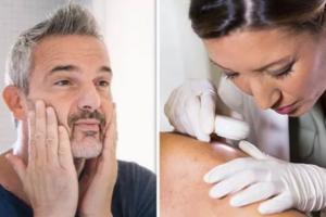 Pesë simtomat e kancerit të lëkurës