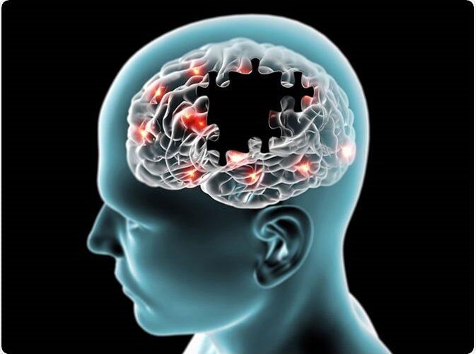 Kërkimet e reja identifikojnë tre nëntipe të ndryshme te Alzhemierit