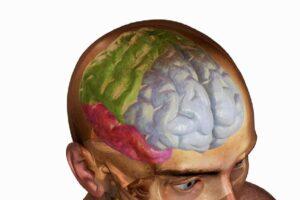 Shenjat dhe simptomat pas traumës së kokës