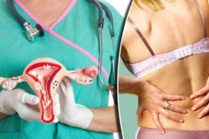 5 simptomat e kancerit të qafës së mitrës që duhet të njohë çdo grua