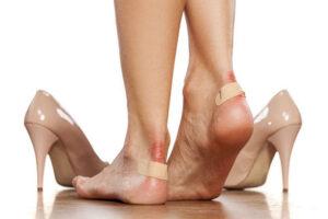 Flluskat e lëkurës, si t'i trajtoni ato