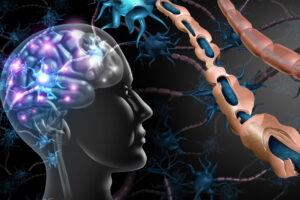 Skleroza e shumëfishtë, shkaqet dhe pasojat