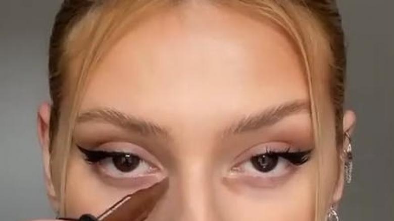 Rrathët e errët nën sy janë trendi më i fundit i bukurisë