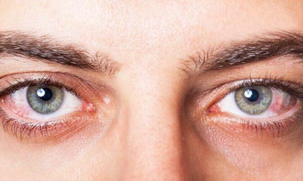 Kur forma e syve zbulon karakterin tuaj