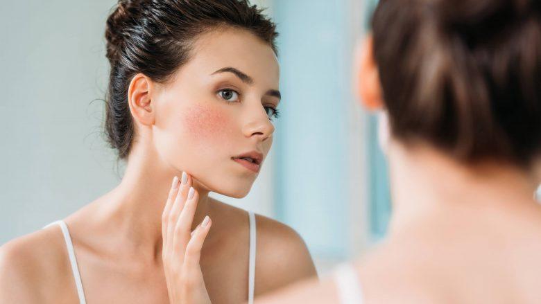 E dëgjojmë shpesh, por ç'do të thotë të kesh 'lëkurë të ndjeshme'?