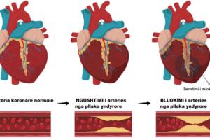 Ngushtimi/bllokimi i arterieve të zemrës