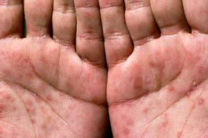 Cka është sifilizi dhe si trajtohet?