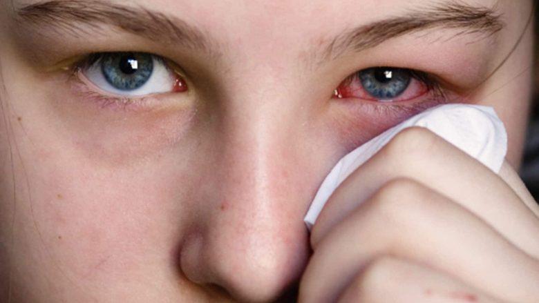 Njollat e kuqe në sy. Pse shkaktohen dhe a janë të rrezikshme
