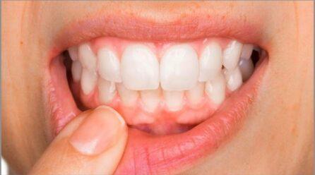 Gjakderdhja nga mishi i dhëmbëve mund të jetë një shenjë e mungesës së vitaminës C
