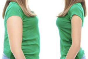 Shqipëria e treta në Europë për nivelin e lartë të obezitetit të grave