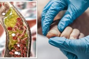 Kolesteroli i lartë: Shenja në thonjtë tuaj që paralajmëron se nivelet janë të larta