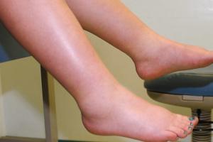Kur duhet të shqetësohemi për ënjtjen e këmbëve?